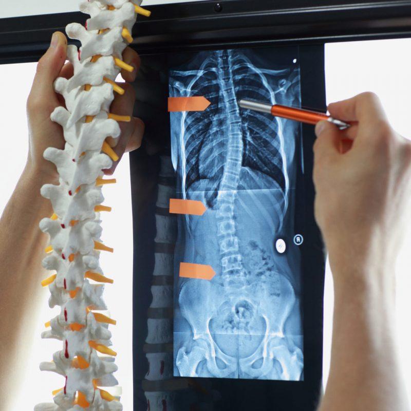 Diagnostyka i terapia skrzywień kręgosłupa.
